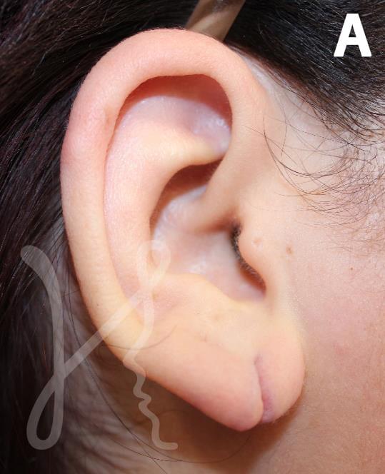 earlobe repair surgery in cleveland, ohio