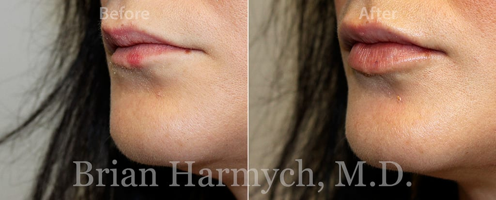 lip augmentation Restylane in Cleveland, Ohio