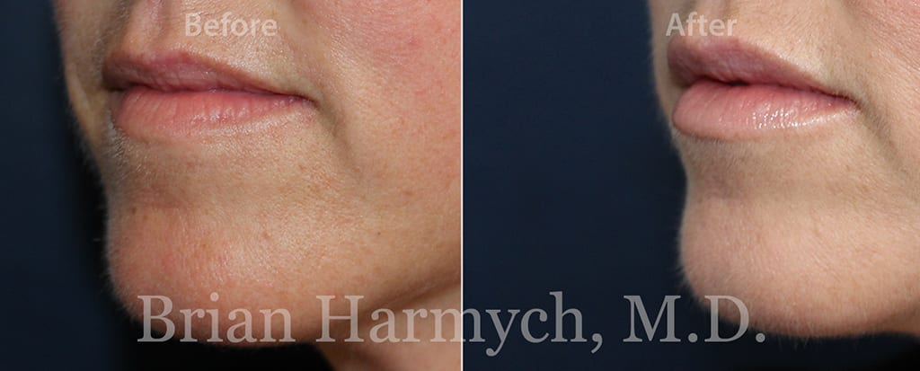 lip injection in cleveland plastic surgery 4a