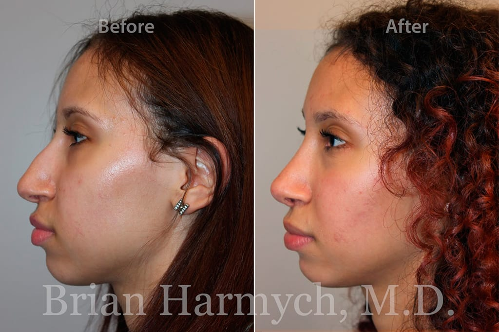 rhinoplasty nose job in cleveland OH