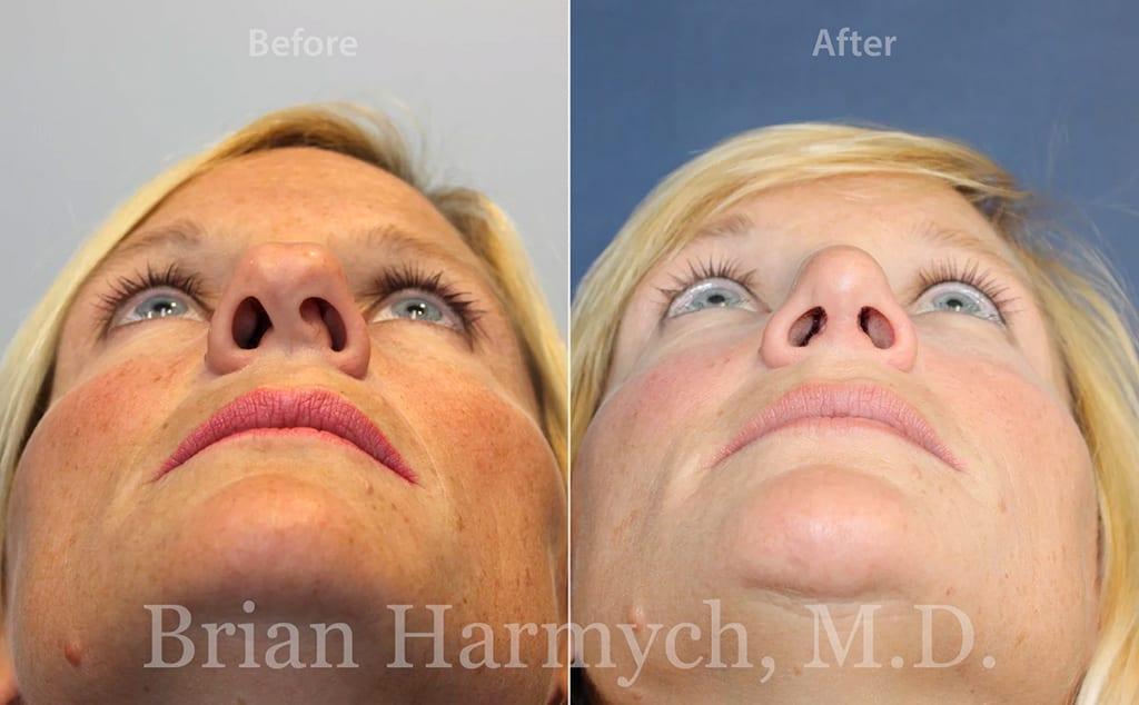 rhinoplasty nose job cleveland ohio 6