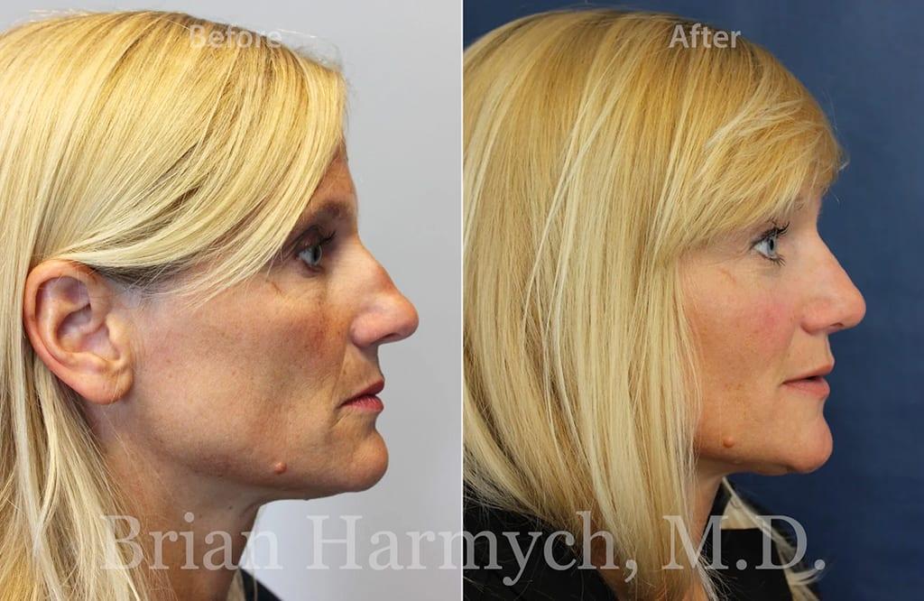 rhinoplasty nose job cleveland ohio 4