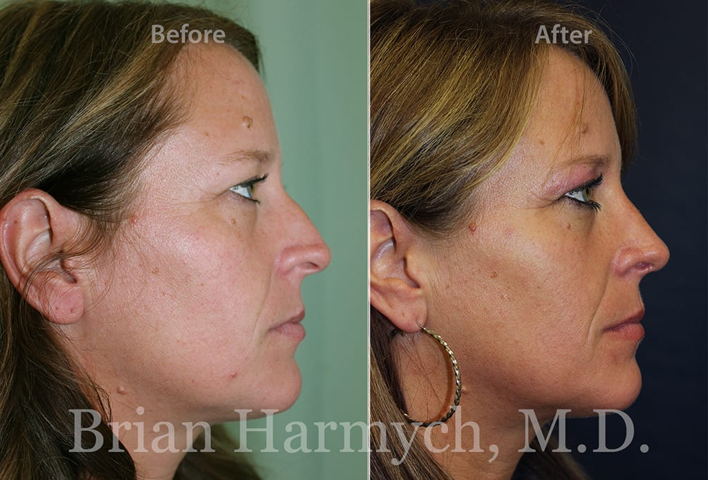 rhinoplasty nose job in Cleveland, OH