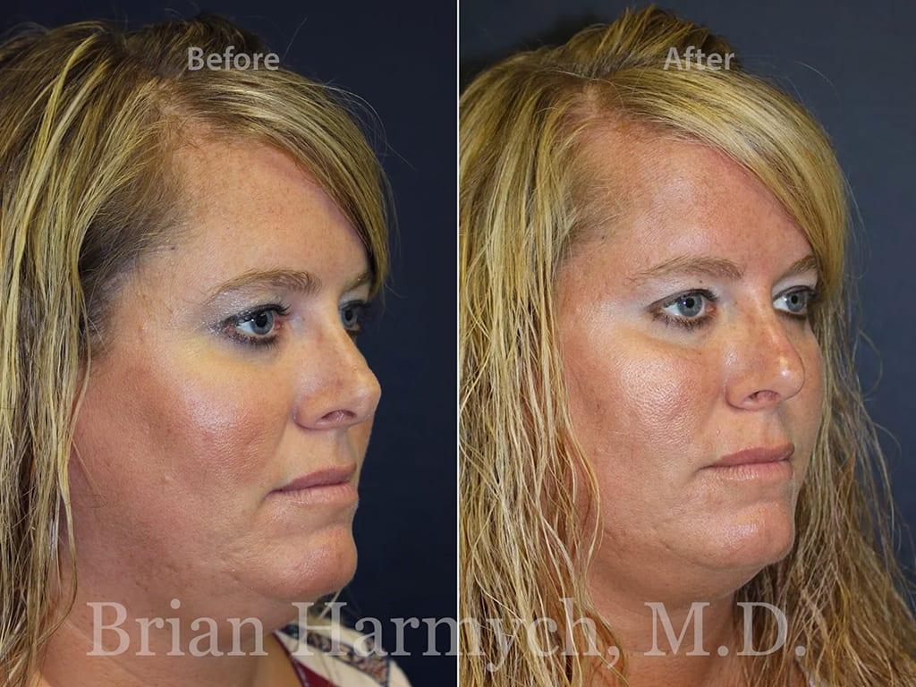 rhinoplasty nose job cleveland ohio 14
