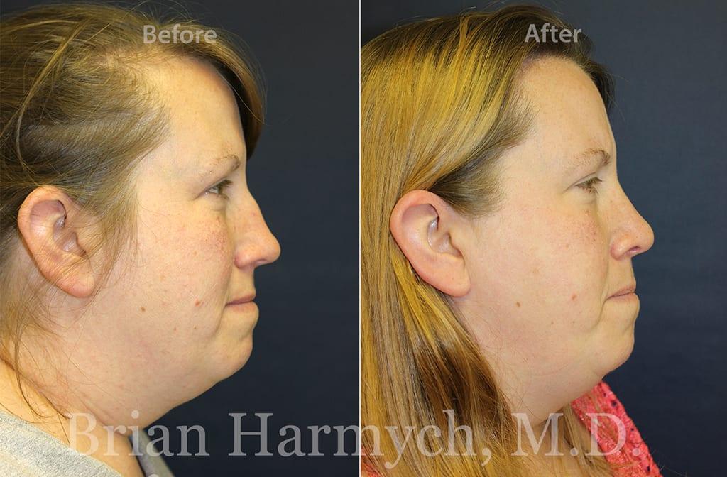 rhinoplasty nose job cleveland ohio11