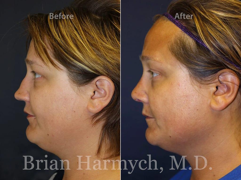 rhinoplasty nose job cleveland ohio 10