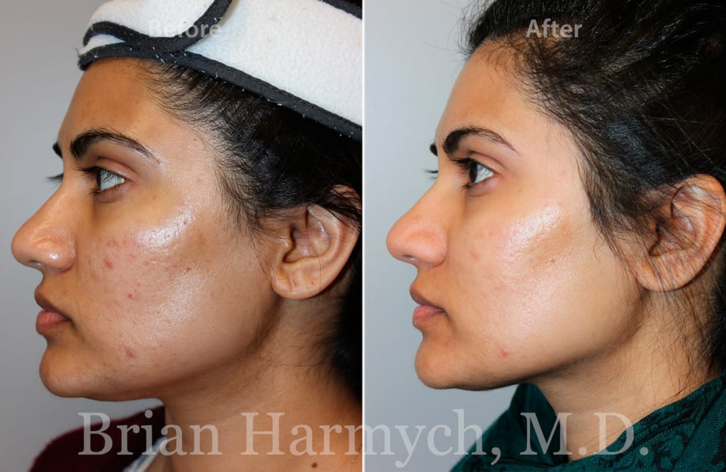 Microneedling in Cleveland, Ohio