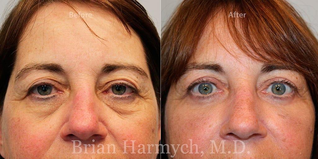 Eyelid Surgeon in Cleveland, Ohio