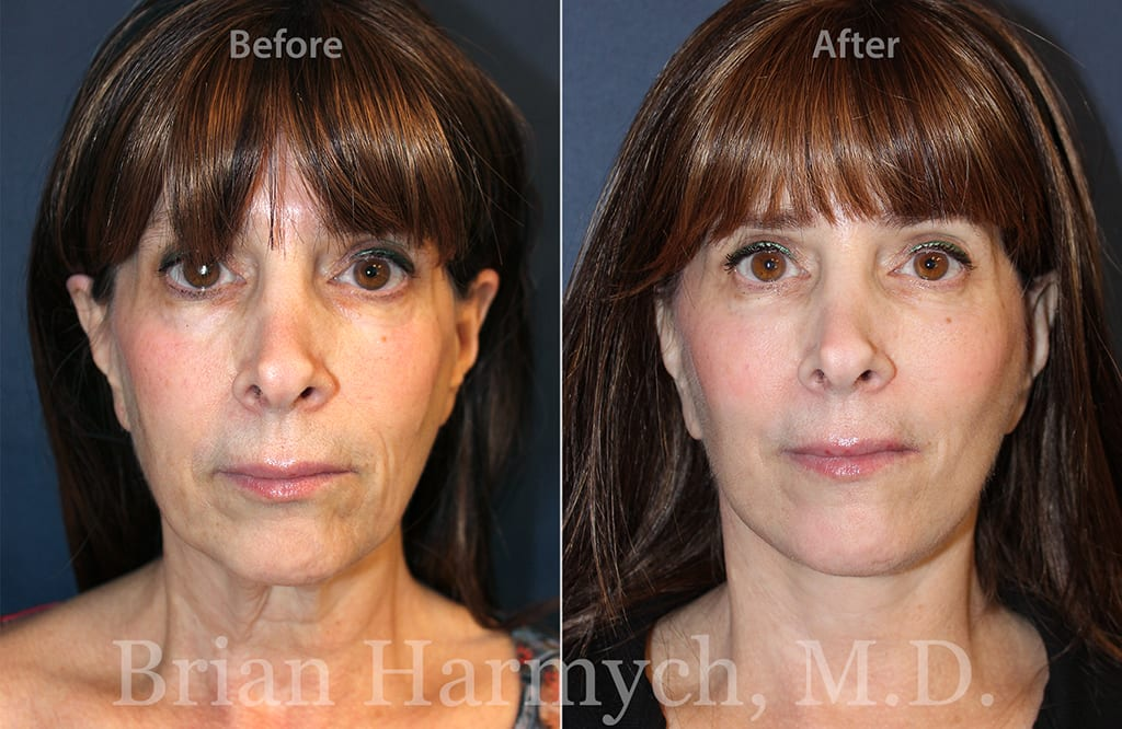 facelift in cleveland plastic surgery 1a