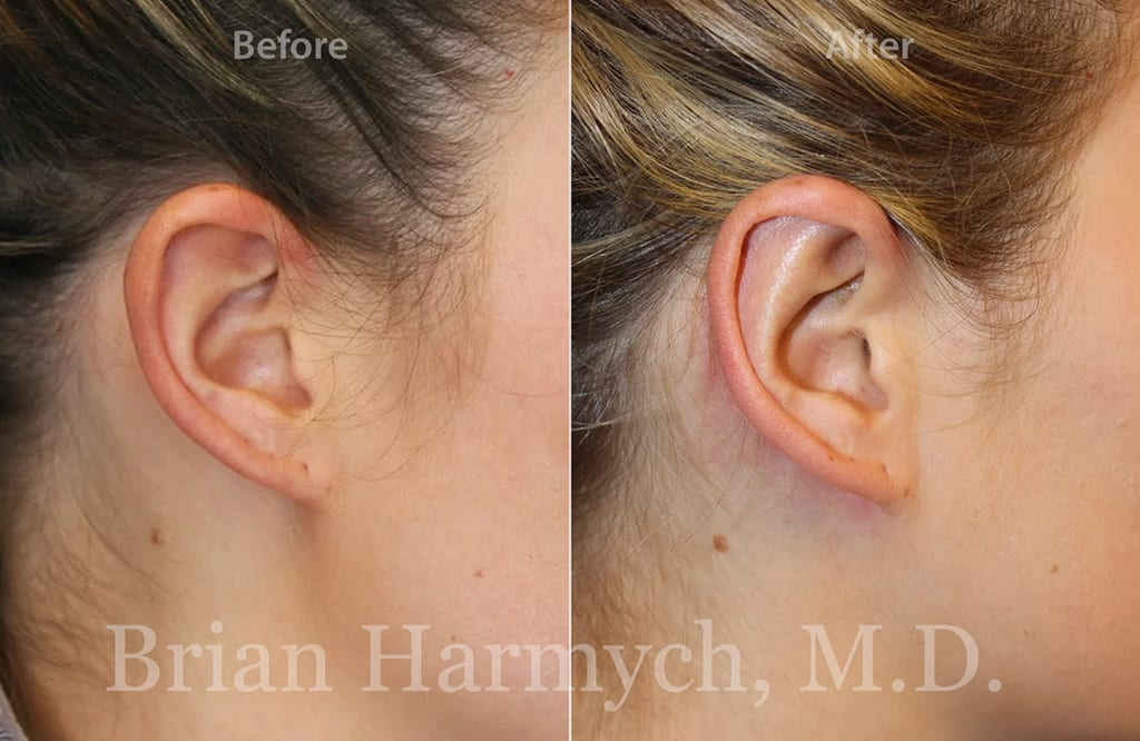 otoplasty ear surgery in cleveland, ohio