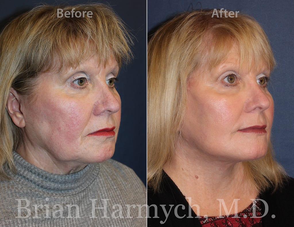Neck Lift Surgery in Cleveland, OH