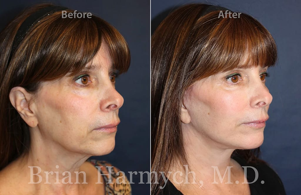 How much does a facelift cost in Cleveland, Ohio?