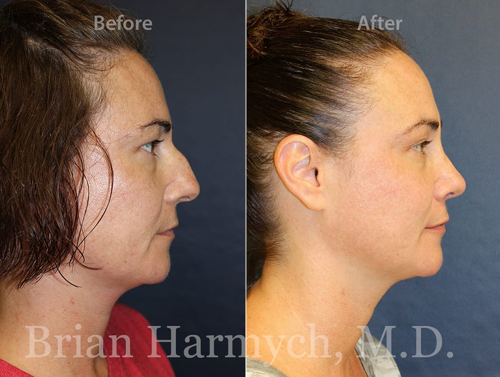 nose job recovery cleveland, ohio