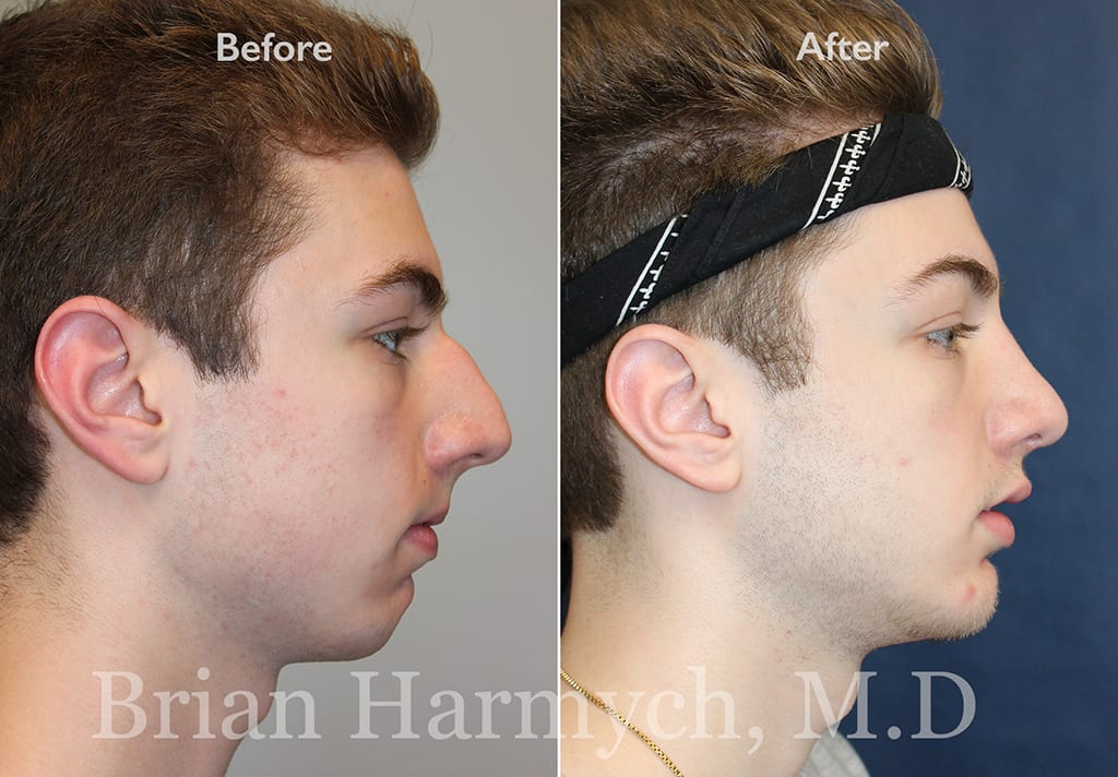 rhinoplasty nose job in cleveland ohio