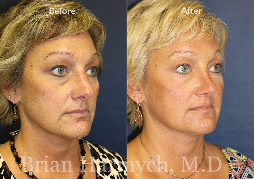 nose job correction in cleveland, ohio