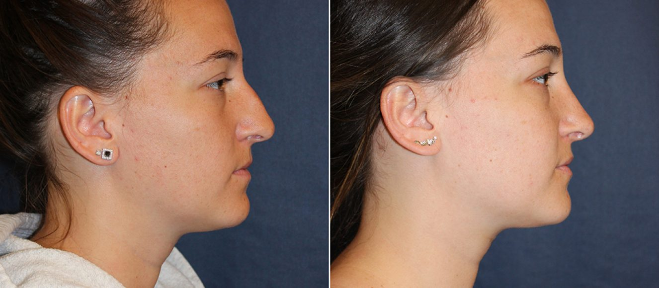 Rhino15_C_nosejob_rhinoplasty_cleveland_ohio_plasticsurgeon_facial_plastic_surgery