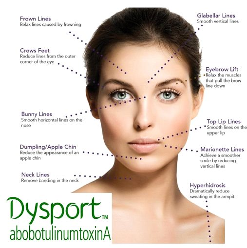 Dysport Treatment in Cleveland, Ohio