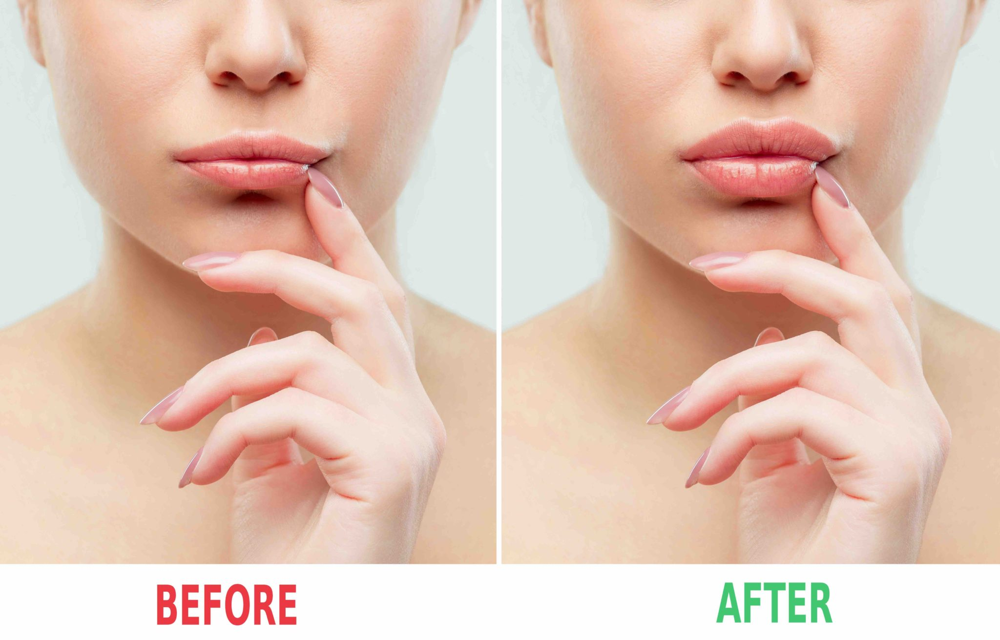 Lip Augmentation Surgery in Cleveland, Ohio - Best Lip Surgeon in Cleveland