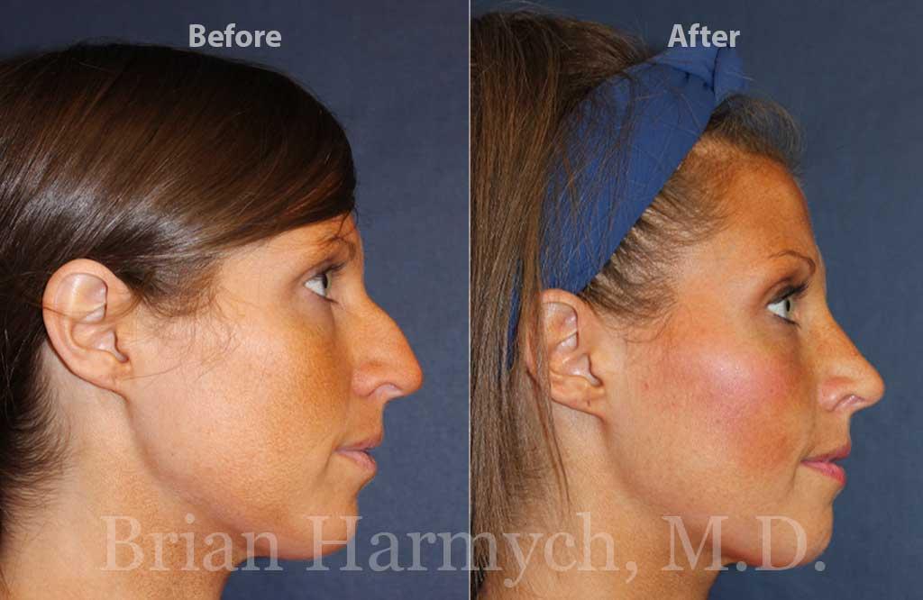 Nose Job Rhinoplasty in Cleveland Ohio