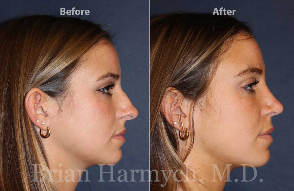 Rhinoplasty Nose Job Cleveland