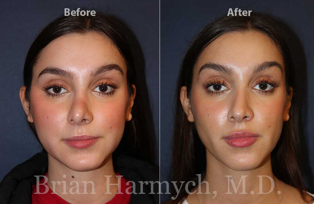 revision rhinoplasty and nose job correction in cleveland, ohio